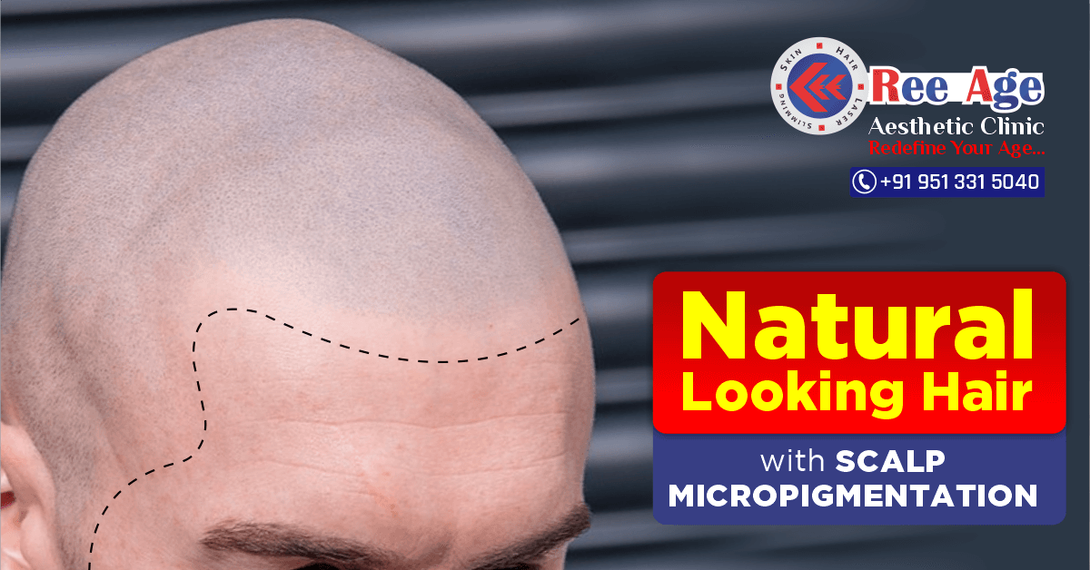 Natural Looking Hair with Scalp Micropigmentation
