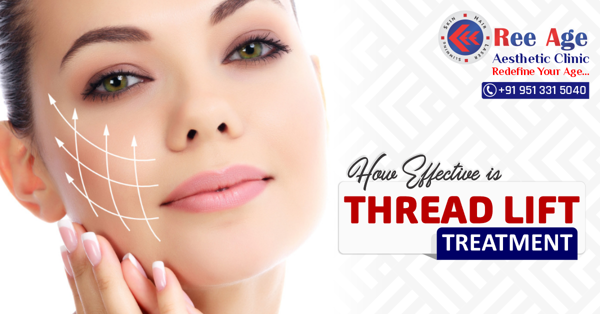 How effective is thread lift treatments?